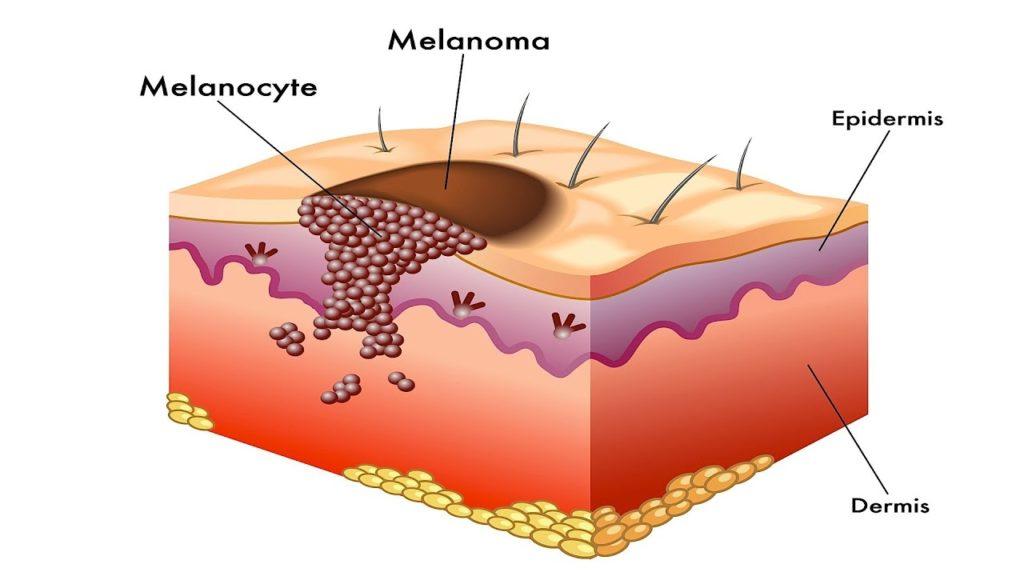Understanding Melanoma - AIM at Melanoma Foundation